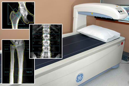 DXA scans are used primarily to evaluate bone mineral density. DXA scans can also be used to measure total body composition and fat content with a high degree of accuracy comparable to hydrostatic weighing with a few important caveats.